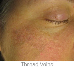 Thread Vein Removal Southsea and Chichester
